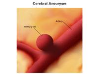 Illustration of cerebral aneurysm