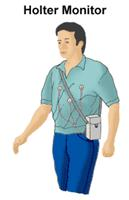 Illustration of a man wearing a Holter monitor