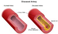 Illustration of a normal and diseased artery