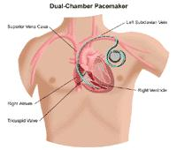 Illustration of a dual-chamber pacemaker