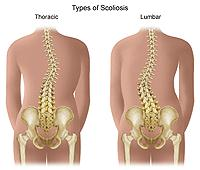 Illustration demonstrating thoracic and lumbar scoliosis