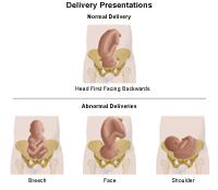 Illustration demonstrating normal delivery, and abnormal delivery presentations