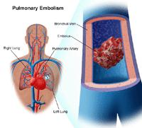 Illustration of a pulmonary embolism