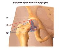 Illustration demonstrating slipped capital femoral epiphysis