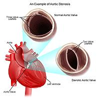 Illustration of aortic stenosis