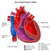 Illustration of the anatomy of a heart with an atrial septal defect