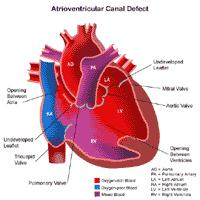 Anatomy of a heart with an atrioventricular canal defect