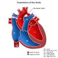 Anatomy of a heart with a coarctation of the aorta