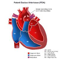 Illustration of the anatomy of a heart with a patent ductus arteriosus