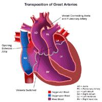 Anatomy of a heart with transposition of the great arteries