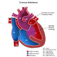 Anatomy of a heart with truncus arteriosus
