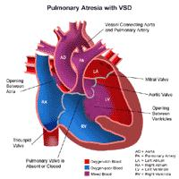 Anatomy of a heart with pulmonary atresia with VSD