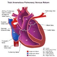 Anatomy of a heart with total anomalous pulmonary venous return