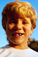 Picture of young boy who has lost his front tooth