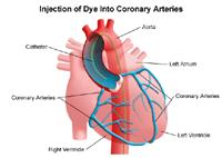 Illustration of coronary arteries after injection of dye used in cardiac catheterization or PTCA