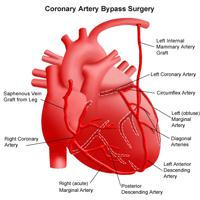 Illustration of the anatomy of the heart following coronary artery bypass surgery