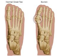 Illustration of a normal great toe and a great toe with a bunion