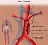 Illustration of aortic dissection