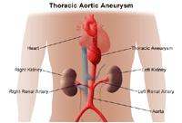 Illustration of thoracic aortic aneurysm