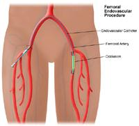 Illustration of femoral popliteal endovascular procedure