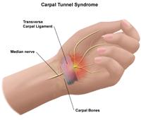 Illustration of hand anatomy of carpal tunnel syndrome