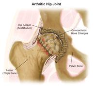 Illustration of an Arthritic Hip Joint