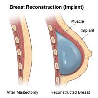 Illustration of a breast side view, before and after reconstruction (Implant)