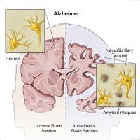 Illustration showing how alzheimer affects the brain