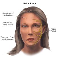 Illustration of Bell's Palsy