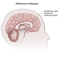 Illustration of Parkinson's disease effect on the brain