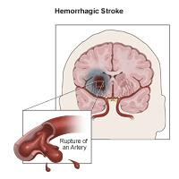 Illustration of hemorrhagic stroke