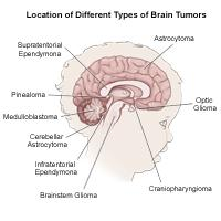 Illustration of the brain detailing common tumor sites, child