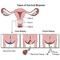 Illustration of a cervical biopsy procedure