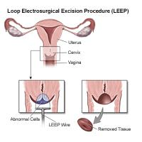 Illustration of a LEEP procedure