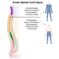 Illustration of acute spinal cord injuries that would result either in quadriplegia or paraplegia