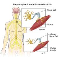 Illustration of amyotrophic lateral sclerosis