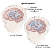 Illustration of hydrocephalus